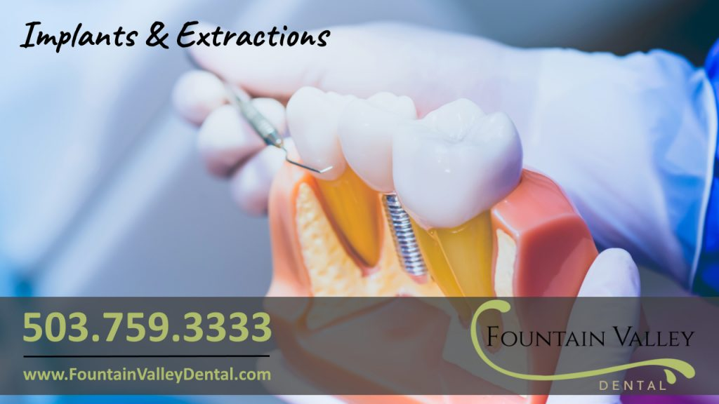 Molalla Dentist General and family dentistry in Molalla Oregon Dental Implants and Extractions