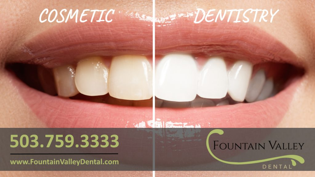 Cosmetic Dentistry Dentist in Molalla Oregon Teeth Whitening Crowns Porcelain Veneers Invisalign Braces at Fountain Valley Dental