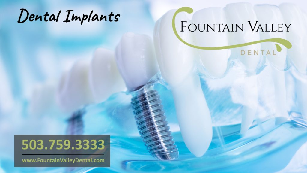 Dental Implants Dentists in Molalla OR Restorative Implant Dentistry